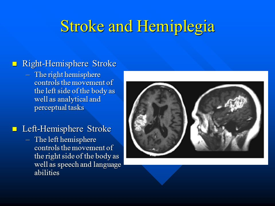 Stroke and Hemiplegia Right-Hemisphere Stroke Right-Hemisphere Stroke –The right hemisphere controls the movement of the left side of the body as well as analytical and perceptual tasks Left-Hemisphere Stroke Left-Hemisphere Stroke –The left hemisphere controls the movement of the right side of the body as well as speech and language abilities