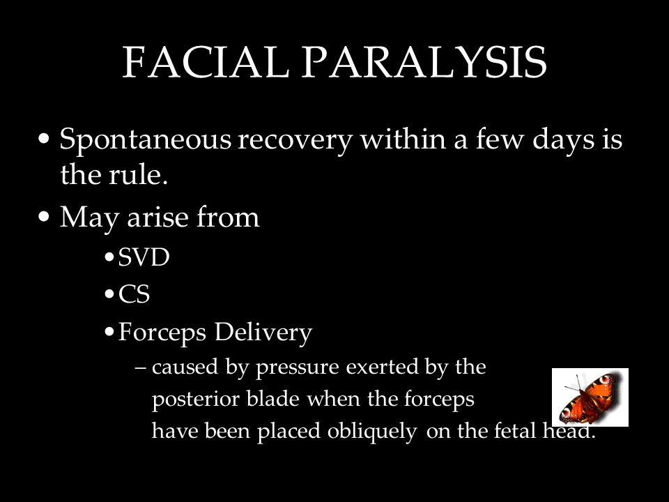 FACIAL PARALYSIS Spontaneous recovery within a few days is the rule.