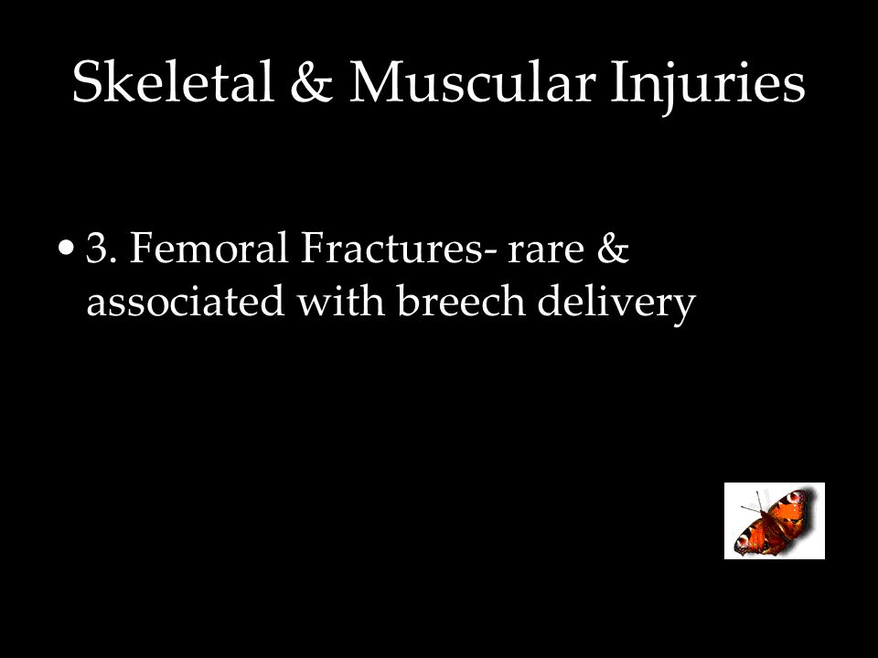 Skeletal & Muscular Injuries 3. Femoral Fractures- rare & associated with breech delivery