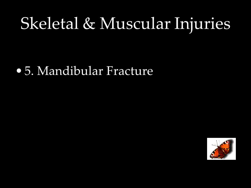 Skeletal & Muscular Injuries 5. Mandibular Fracture