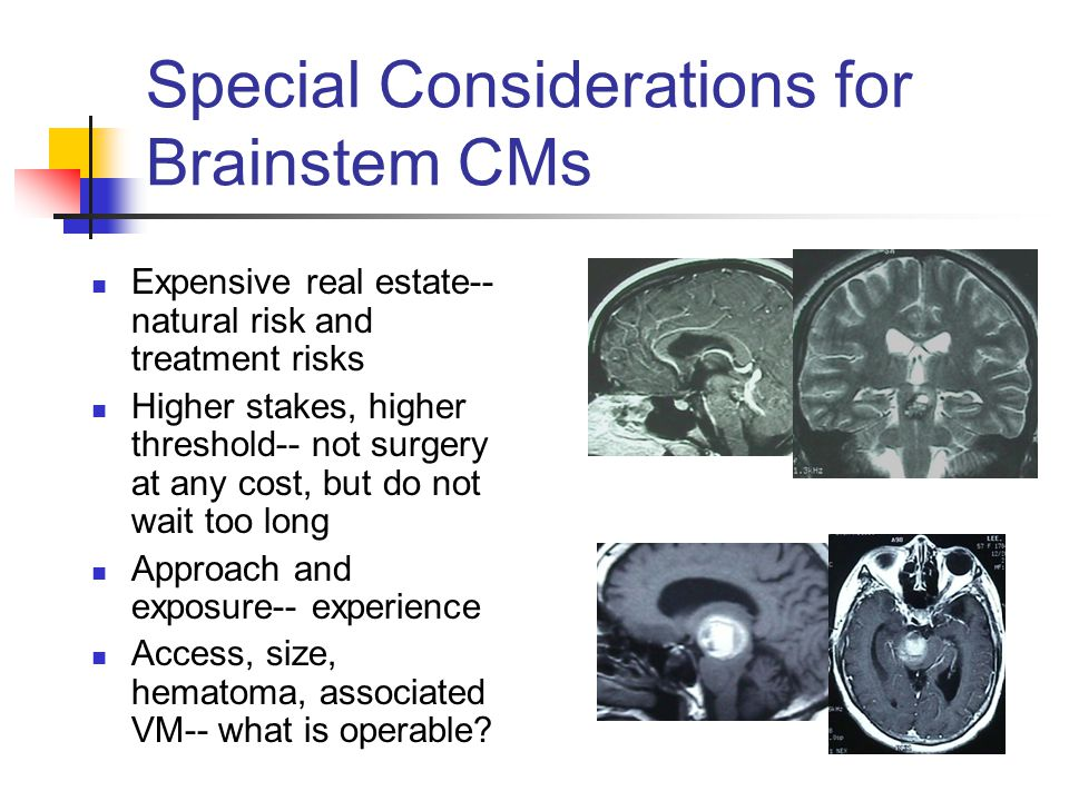 Special Considerations for Brainstem CMs Expensive real estate-- natural risk and treatment risks Higher stakes, higher threshold-- not surgery at any cost, but do not wait too long Approach and exposure-- experience Access, size, hematoma, associated VM-- what is operable