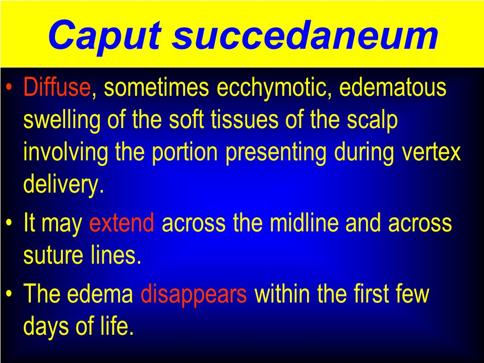 Caput succedaneum Diffuse, sometimes ecchymotic, edematous swelling of the soft tissues of the scalp involving the portion presenting during vertex delivery.