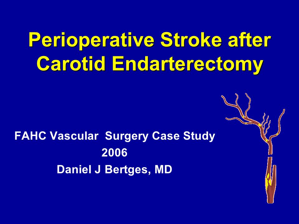 Perioperative Stroke after Carotid Endarterectomy FAHC Vascular Surgery Case Study 2006 Daniel J Bertges, MD