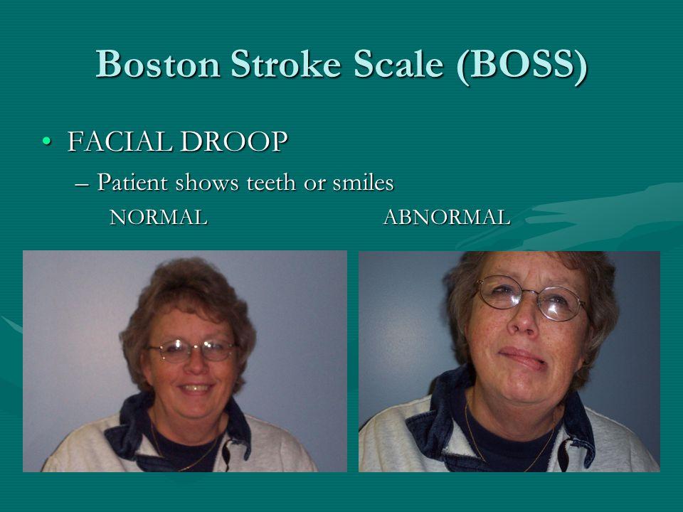 Boston Stroke Scale (BOSS) FACIAL DROOPFACIAL DROOP –Patient shows teeth or smiles NORMALABNORMAL