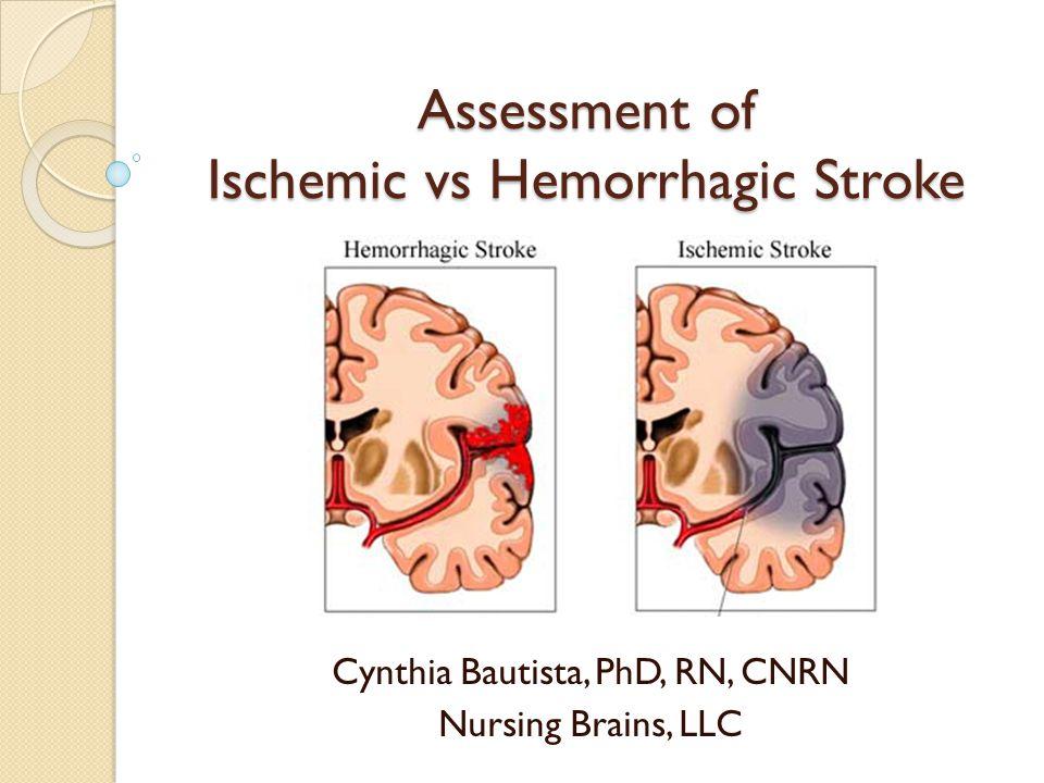 Assessment of Ischemic vs Hemorrhagic Stroke Cynthia Bautista, PhD, RN, CNRN Nursing Brains, LLC