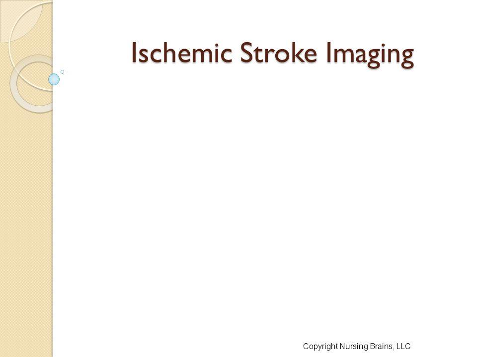 Ischemic Stroke Imaging Copyright Nursing Brains, LLC