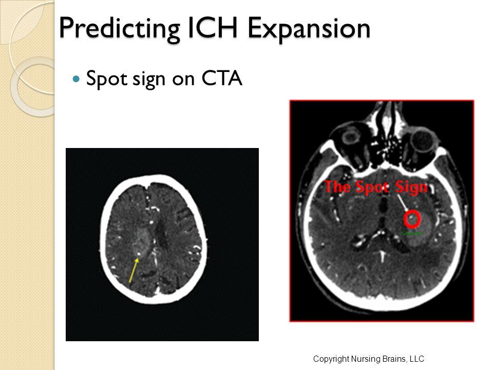 Predicting ICH Expansion Spot sign on CTA Copyright Nursing Brains, LLC