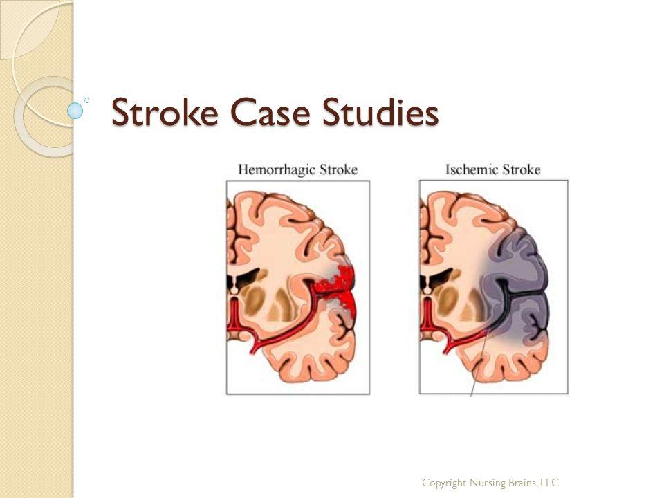 Stroke Case Studies Copyright Nursing Brains, LLC