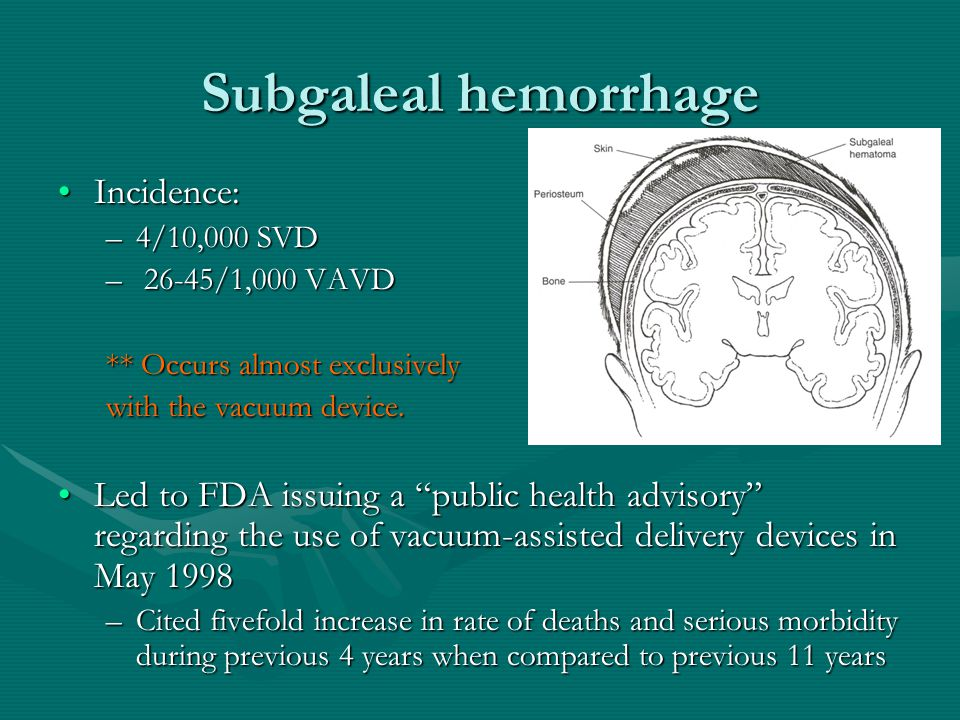 """Subgaleal hemorrhage Incidence:Incidence: –4/10,000 SVD – 26-45/1,000 VAVD ** Occurs almost exclusively with the vacuum device. Led to FDA issuing a """""""
