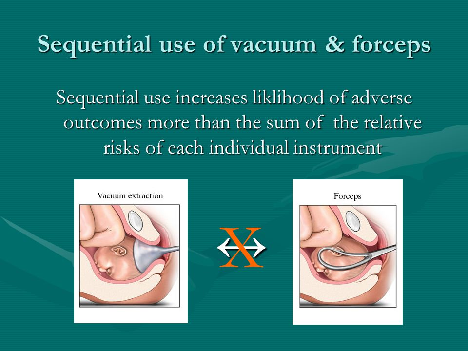 Sequential use of vacuum & forceps Sequential use increases liklihood of adverse outcomes more than the sum of the relative risks of each individual i