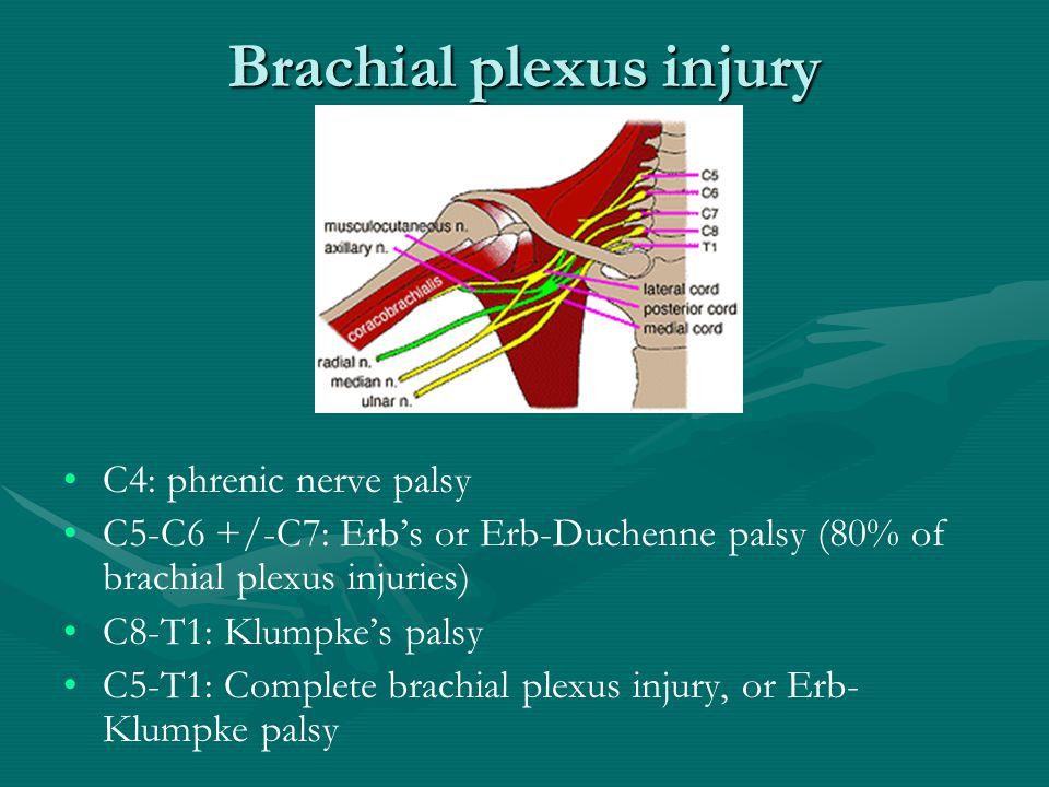 Brachial plexus injury C4: phrenic nerve palsy C5-C6 +/-C7: Erb's or Erb-Duchenne palsy (80% of brachial plexus injuries) C8-T1: Klumpke's palsy C5-T1