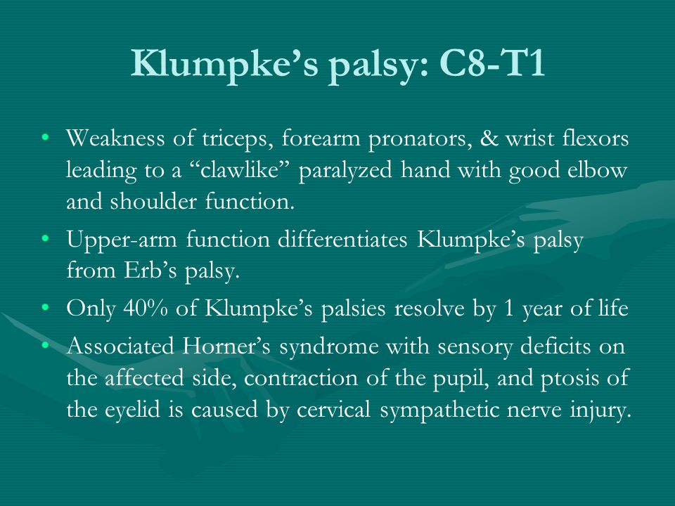 Klumpke's palsy: C8-T1 Weakness of triceps, forearm pronators, & wrist flexors leading to a ''clawlike'' paralyzed hand with good elbow and shoulder f