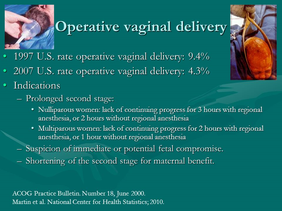 Operative vaginal delivery 1997 U.S. rate operative vaginal delivery: 9.4%1997 U.S. rate operative vaginal delivery: 9.4% 2007 U.S. rate operative vag