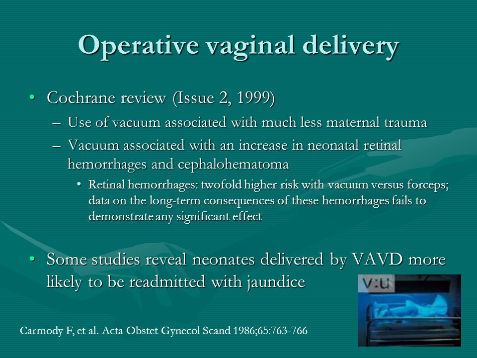 Operative vaginal delivery Cochrane review (Issue 2, 1999)Cochrane review (Issue 2, 1999) –Use of vacuum associated with much less maternal trauma –Va
