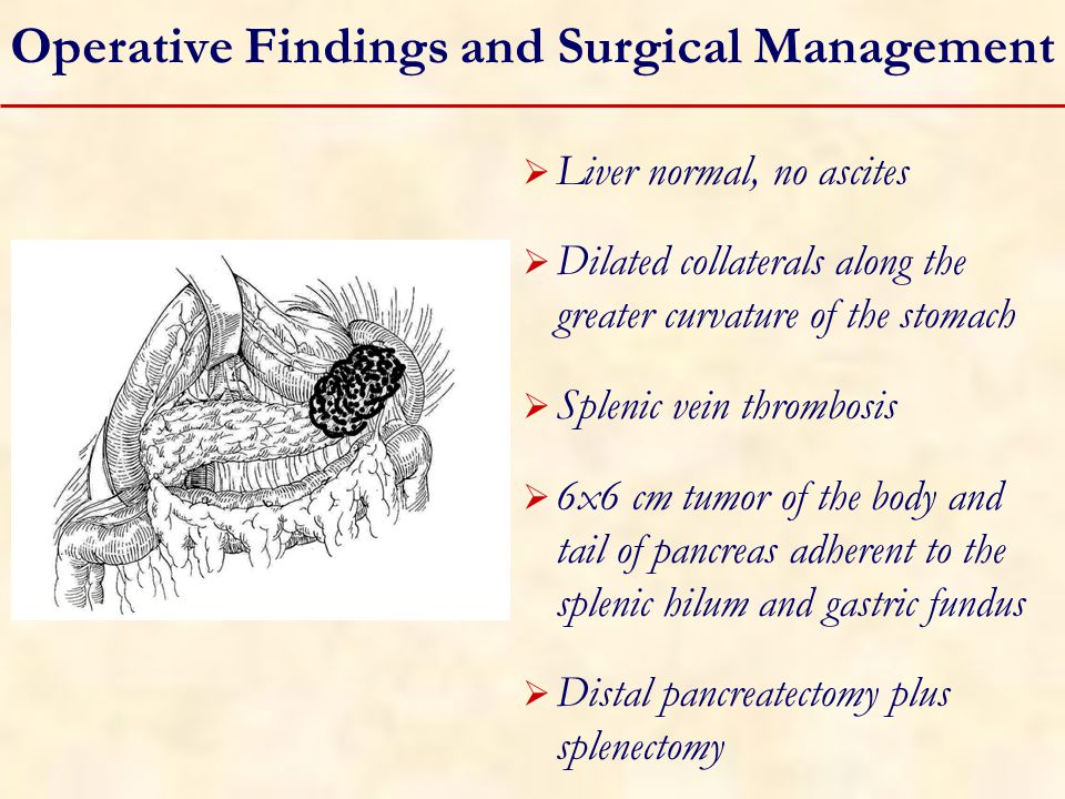 Operative Findings and Surgical Management  Liver normal, no ascites  Dilated collaterals along the greater curvature of the stomach  Splenic vein thrombosis  6x6 cm tumor of the body and tail of pancreas adherent to the splenic hilum and gastric fundus  Distal pancreatectomy plus splenectomy