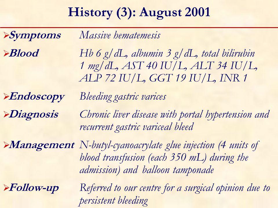 Endoscopic Examination: August 2001 Fundal varices
