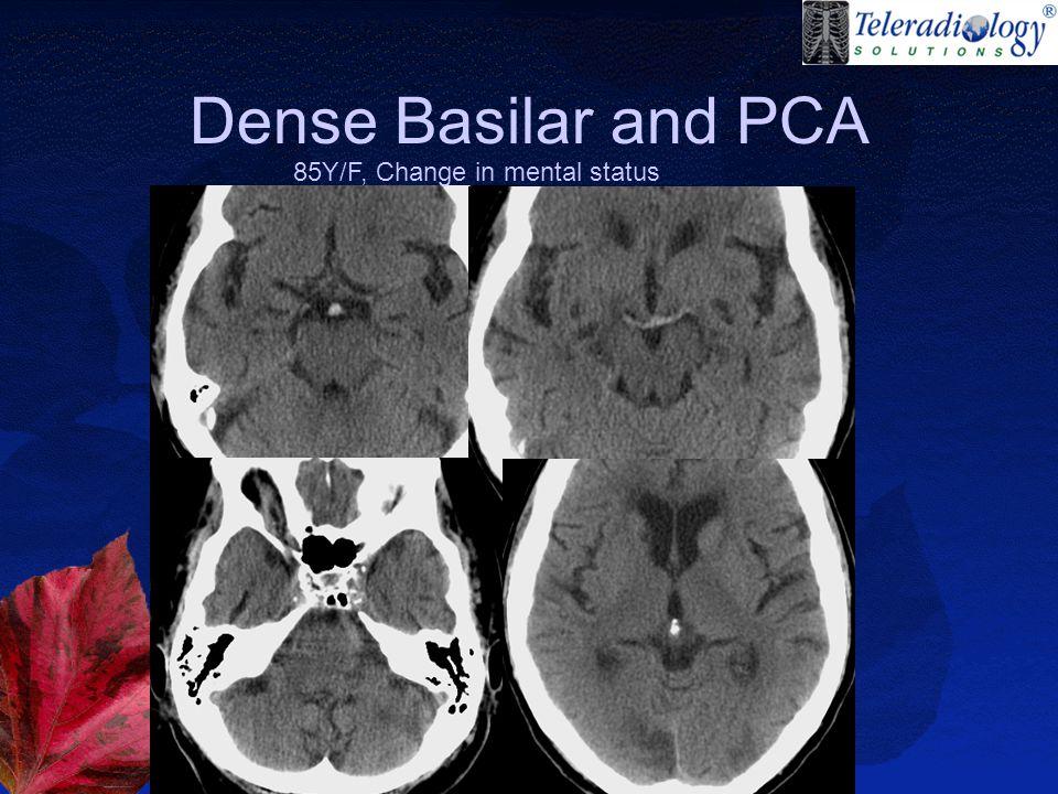 Dense Basilar and PCA 85Y/F, Change in mental status
