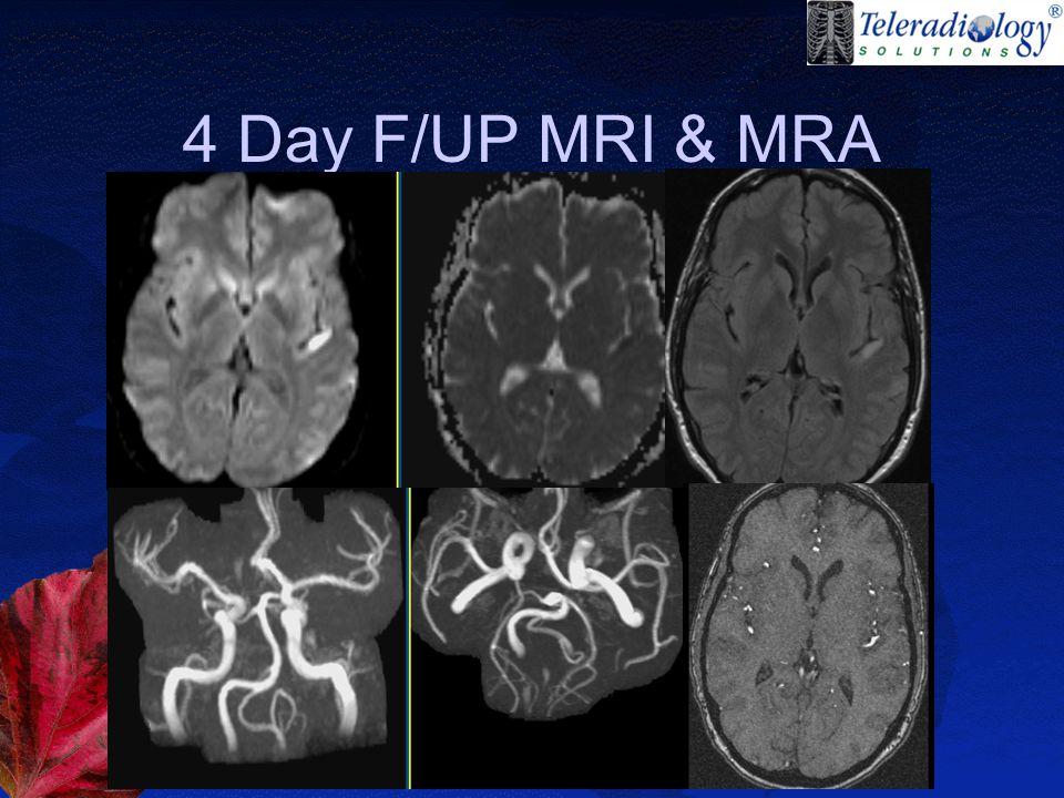4 Day F/UP MRI & MRA