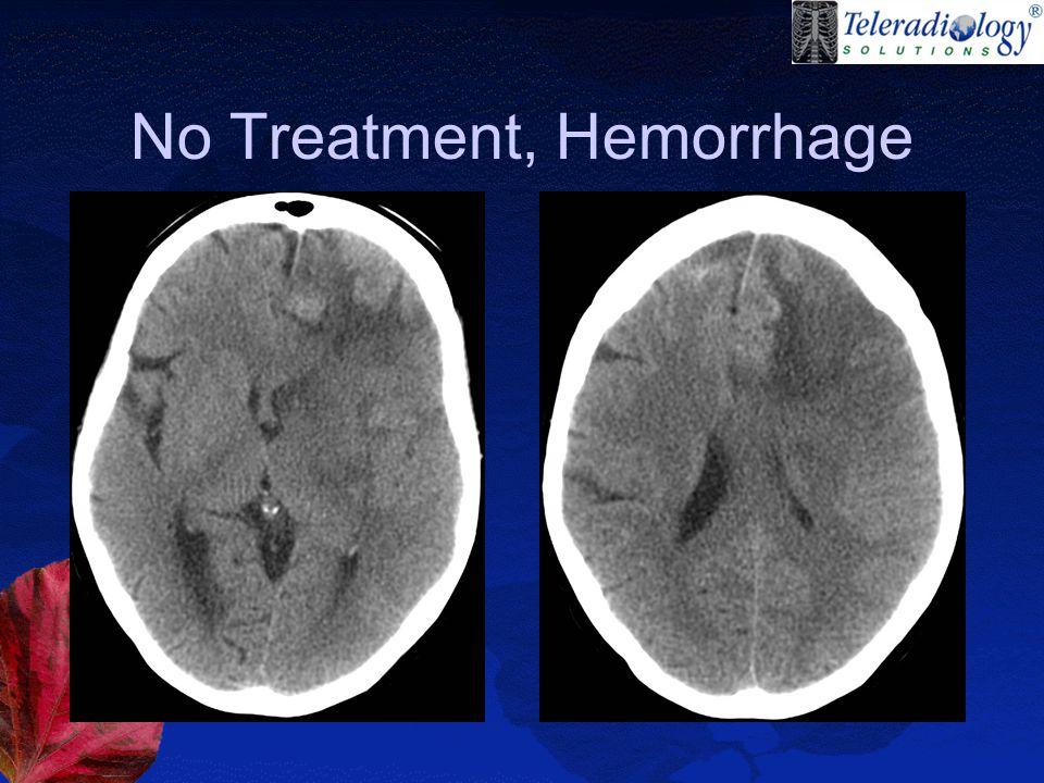 No Treatment, Hemorrhage