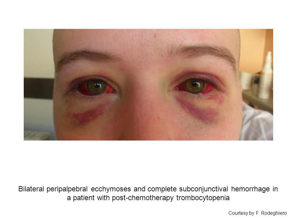 Bilateral peripalpebral ecchymoses and complete subconjunctival hemorrhage in a patient with post-chemotherapy trombocytopenia Courtesy by F. Rodeghie