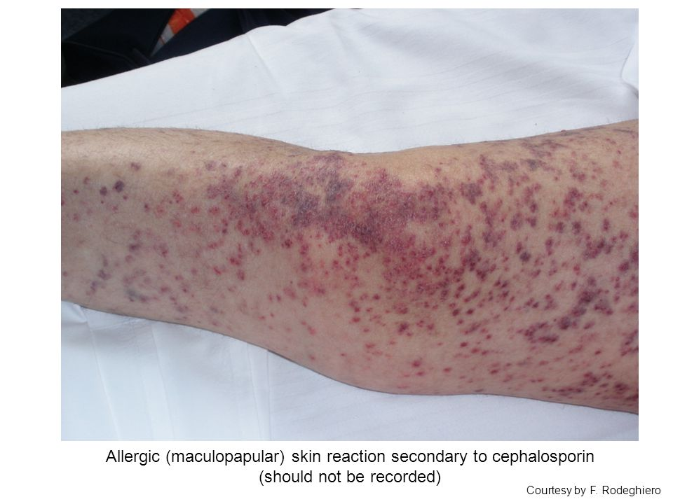 Courtesy by F. Rodeghiero Allergic (maculopapular) skin reaction secondary to cephalosporin (should not be recorded)