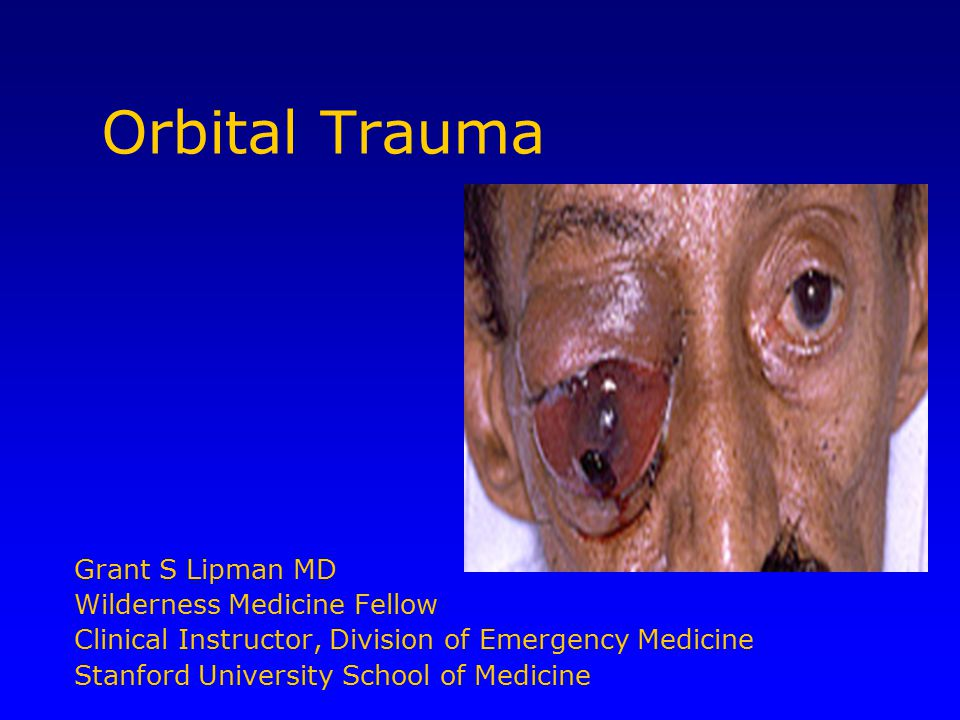 Orbital Trauma Grant S Lipman MD Wilderness Medicine Fellow Clinical Instructor, Division of Emergency Medicine Stanford University School of Medicine
