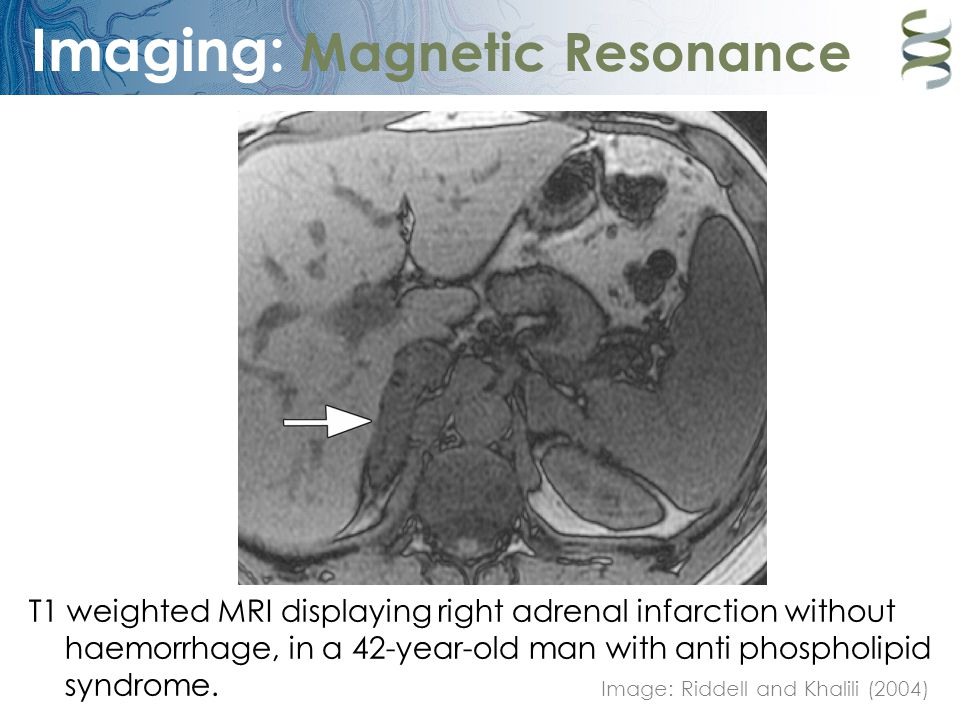 Imaging: Magnetic Resonance T1 weighted MRI displaying right adrenal infarction without haemorrhage, in a 42-year-old man with anti phospholipid syndr