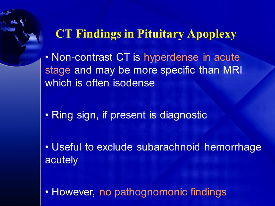 CT Findings in Pituitary Apoplexy Non-contrast CT is hyperdense in acute stage and may be more specific than MRI which is often isodense Ring sign, if