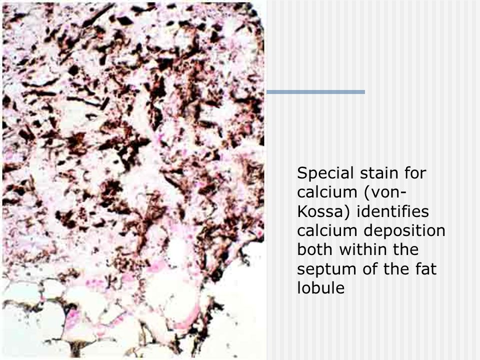 Special stain for calcium (von- Kossa) identifies calcium deposition both within the septum of the fat lobule