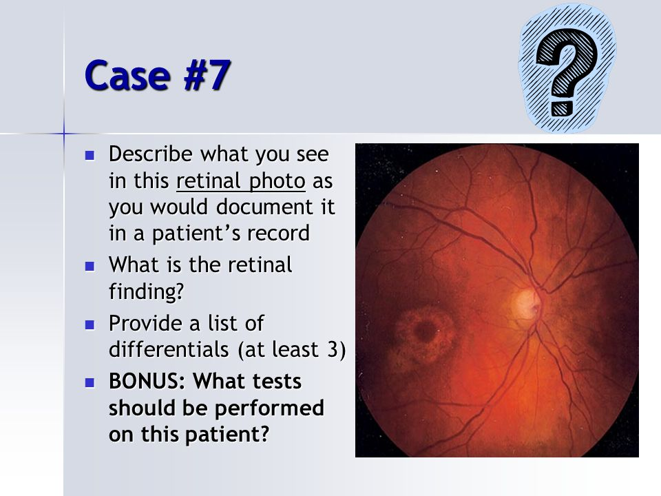 Case #7 Describe what you see in this retinal photo as you would document it in a patient's record Describe what you see in this retinal photo as you would document it in a patient's record What is the retinal finding.