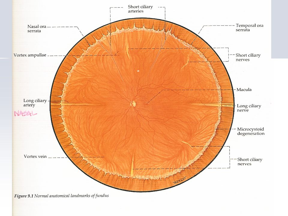 This is a 20D view of OD looking down This is a 20D view of OD looking down Provide a differential list for this retinal finding (at least 3) Provide a differential list for this retinal finding (at least 3) What is your answer and why.