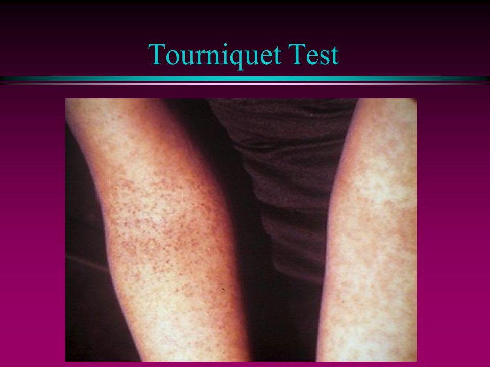 Tourniquet Test