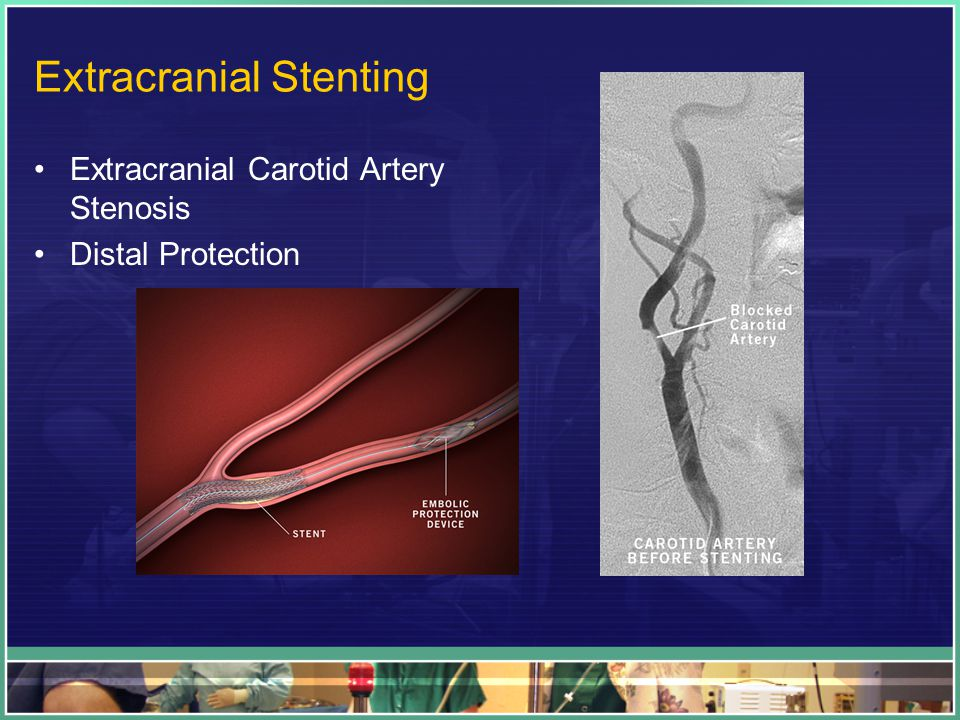 Extracranial Stenting Extracranial Carotid Artery Stenosis Distal Protection