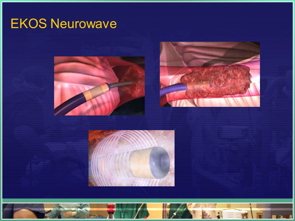 EKOS Neurowave
