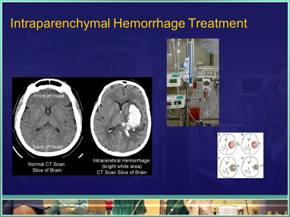 Intraparenchymal Hemorrhage Treatment