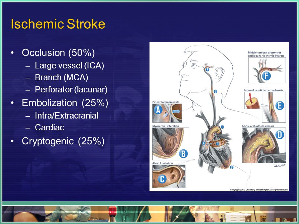 Ischemic Stroke Occlusion (50%) –Large vessel (ICA) –Branch (MCA) –Perforator (lacunar) Embolization (25%) –Intra/Extracranial –Cardiac Cryptogenic (25%)