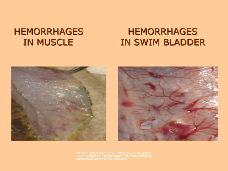 HEMORRHAGES HEMORRHAGES IN MUSCLE IN SWIM BLADDER Photos: Garth Traxler (USGS, Seattle WA), Dr Jim Winton (USGS, Seattle WA), Dr Mohamed Faisal (MSU, Lansing MI) and Dr Paul Bowser (Cornell, Ithaca NY)