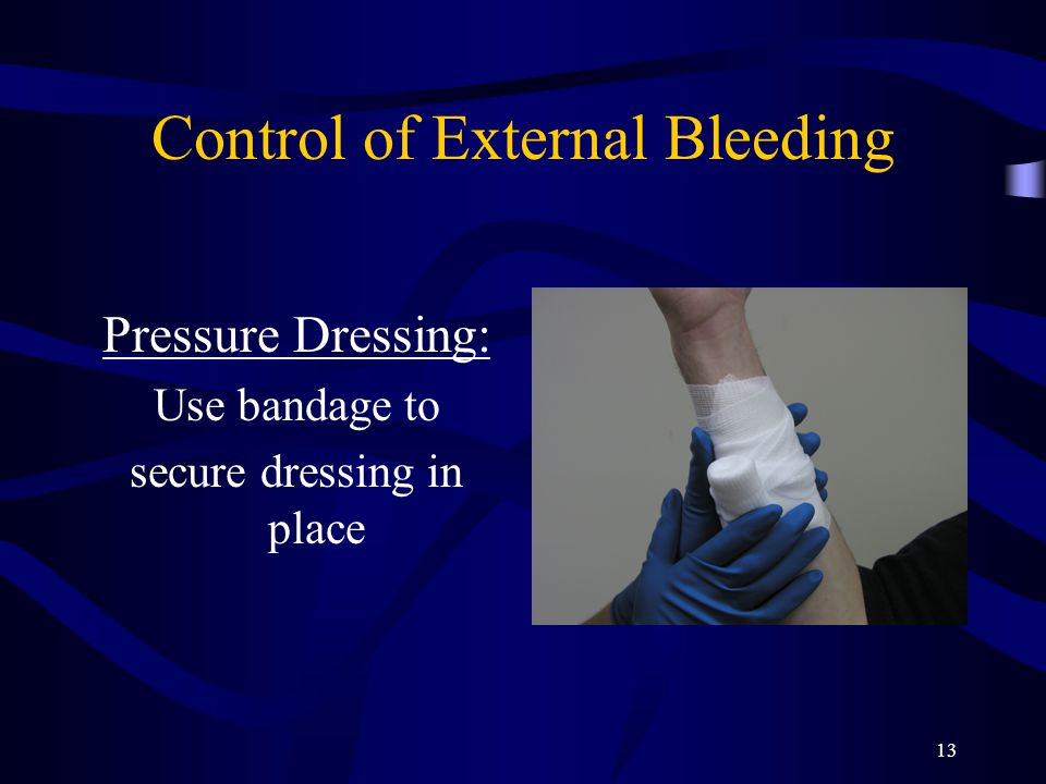 13 Control of External Bleeding Pressure Dressing: Use bandage to secure dressing in place