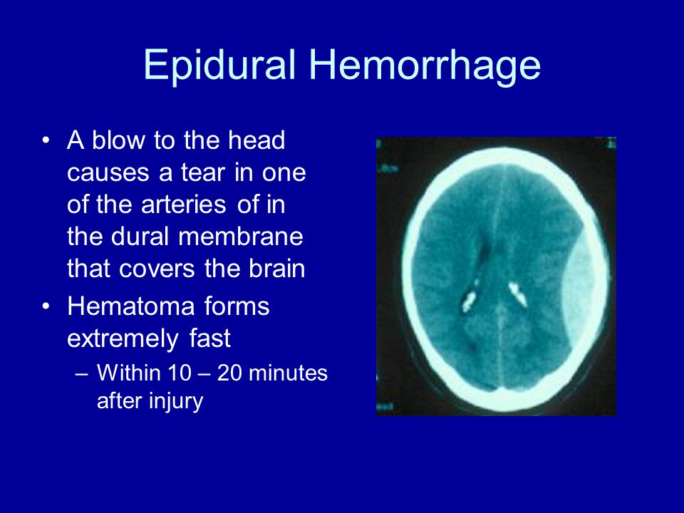Epidural Hemorrhage A blow to the head causes a tear in one of the arteries of in the dural membrane that covers the brain Hematoma forms extremely fast –Within 10 – 20 minutes after injury