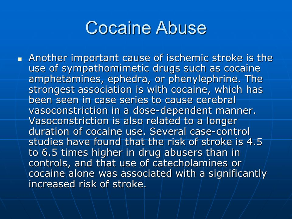 Cocaine Abuse Another important cause of ischemic stroke is the use of sympathomimetic drugs such as cocaine amphetamines, ephedra, or phenylephrine.