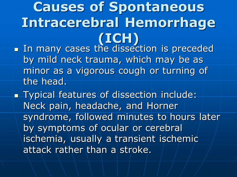 Causes of Spontaneous Intracerebral Hemorrhage (ICH) In many cases the dissection is preceded by mild neck trauma, which may be as minor as a vigorous cough or turning of the head.