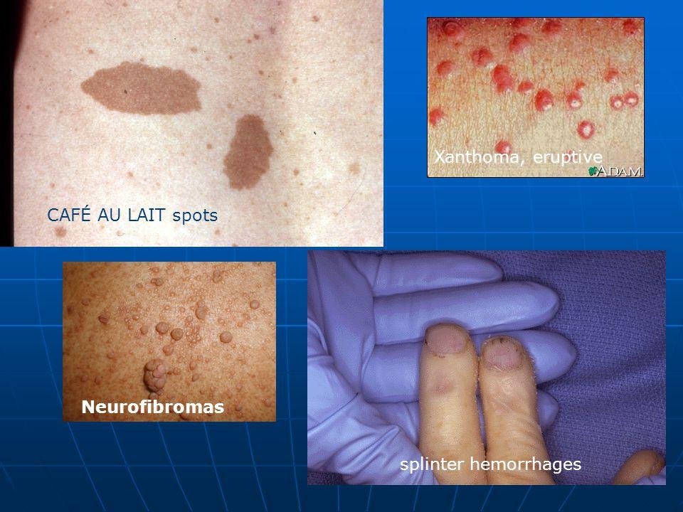 CAFÉ AU LAIT spots Xanthoma, eruptive Neurofibromas splinter hemorrhages