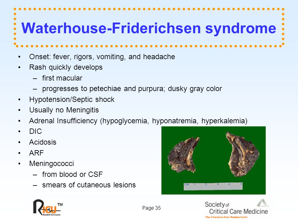 Page 35 Waterhouse-Friderichsen syndrome Onset: fever, rigors, vomiting, and headache Rash quickly develops –first macular –progresses to petechiae and purpura; dusky gray color Hypotension/Septic shock Usually no Meningitis Adrenal Insufficiency (hypoglycemia, hyponatremia, hyperkalemia) DIC Acidosis ARF Meningococci –from blood or CSF –smears of cutaneous lesions library.med.utah.edu/WebPath/jpeg4/ENDO004.jpg