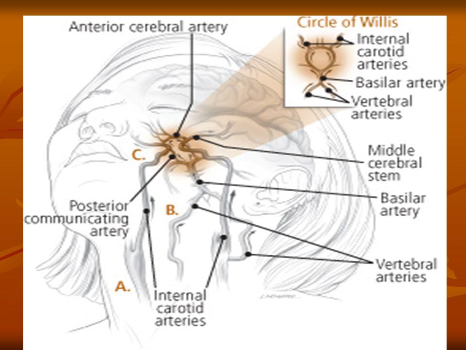 Cerebrovascular Accident Thrombotic Stroke