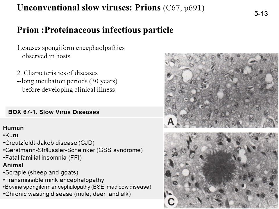 Unconventional slow viruses: Prions (C67, p691) Prion :Proteinaceous infectious particle 1.causes spongiform encephaolpathies observed in hosts 2. Cha