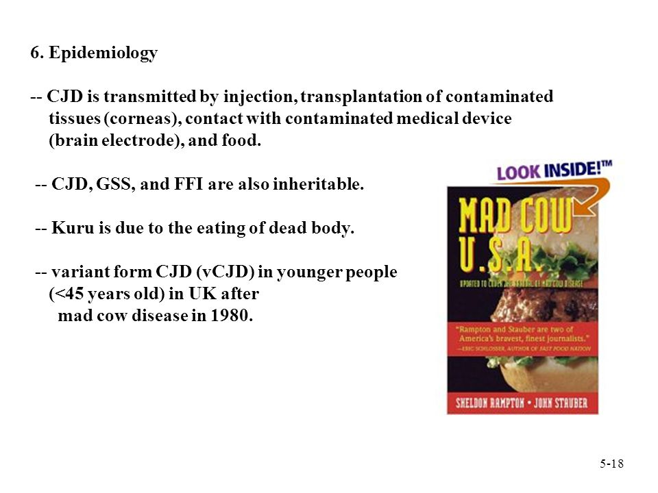 6. Epidemiology -- CJD is transmitted by injection, transplantation of contaminated tissues (corneas), contact with contaminated medical device (brain