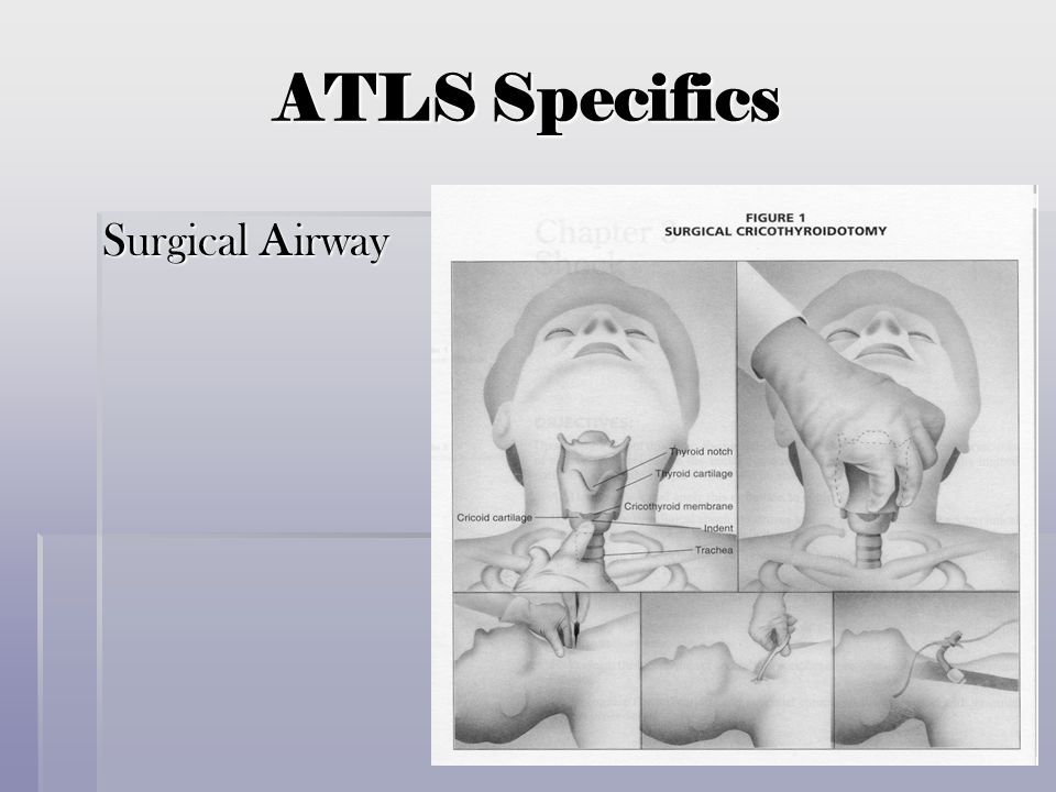 ATLS Specifics Surgical Airway Surgical Airway