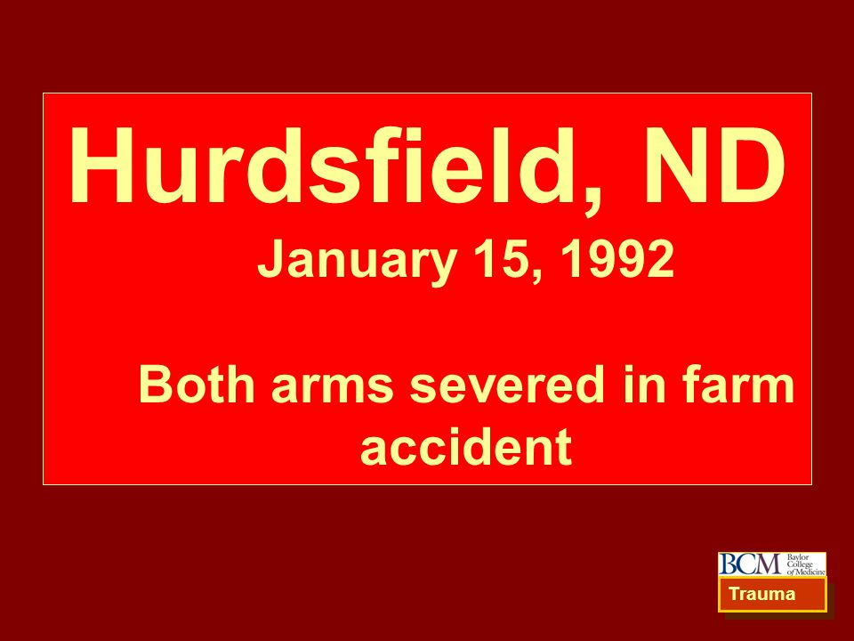 Hurdsfield, ND January 15, 1992 Both arms severed in farm accident Trauma