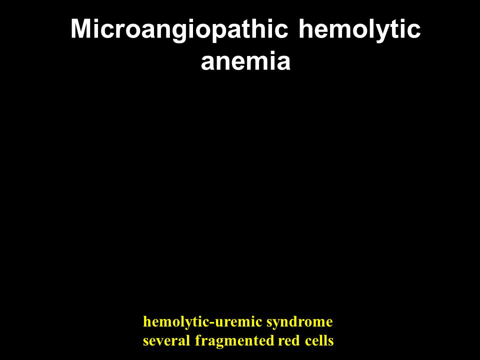 Microangiopathic hemolytic anemia hemolytic-uremic syndrome several fragmented red cells