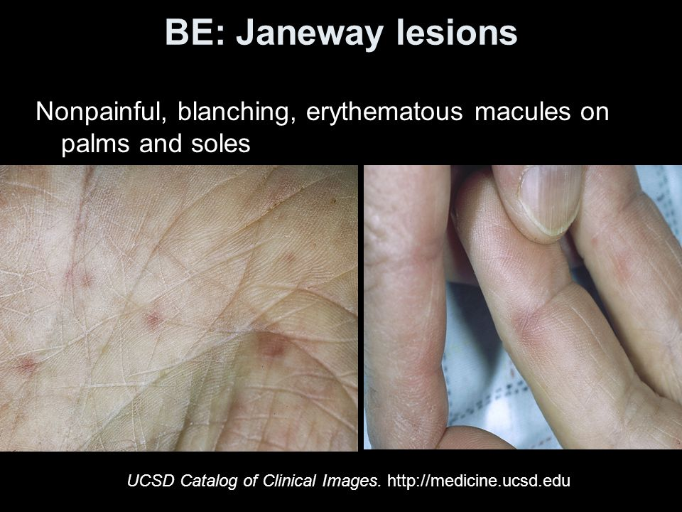 BE: Janeway lesions Nonpainful, blanching, erythematous macules on palms and soles UCSD Catalog of Clinical Images.